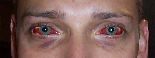 Name:  red_eyes.jpg Views: 2403 Size:  36.0 KB