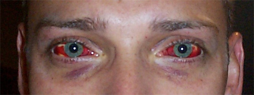 Name:  red_eyes.jpg Views: 2375 Size:  36.0 KB